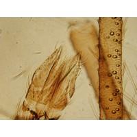 Microscopes inversés biologiques